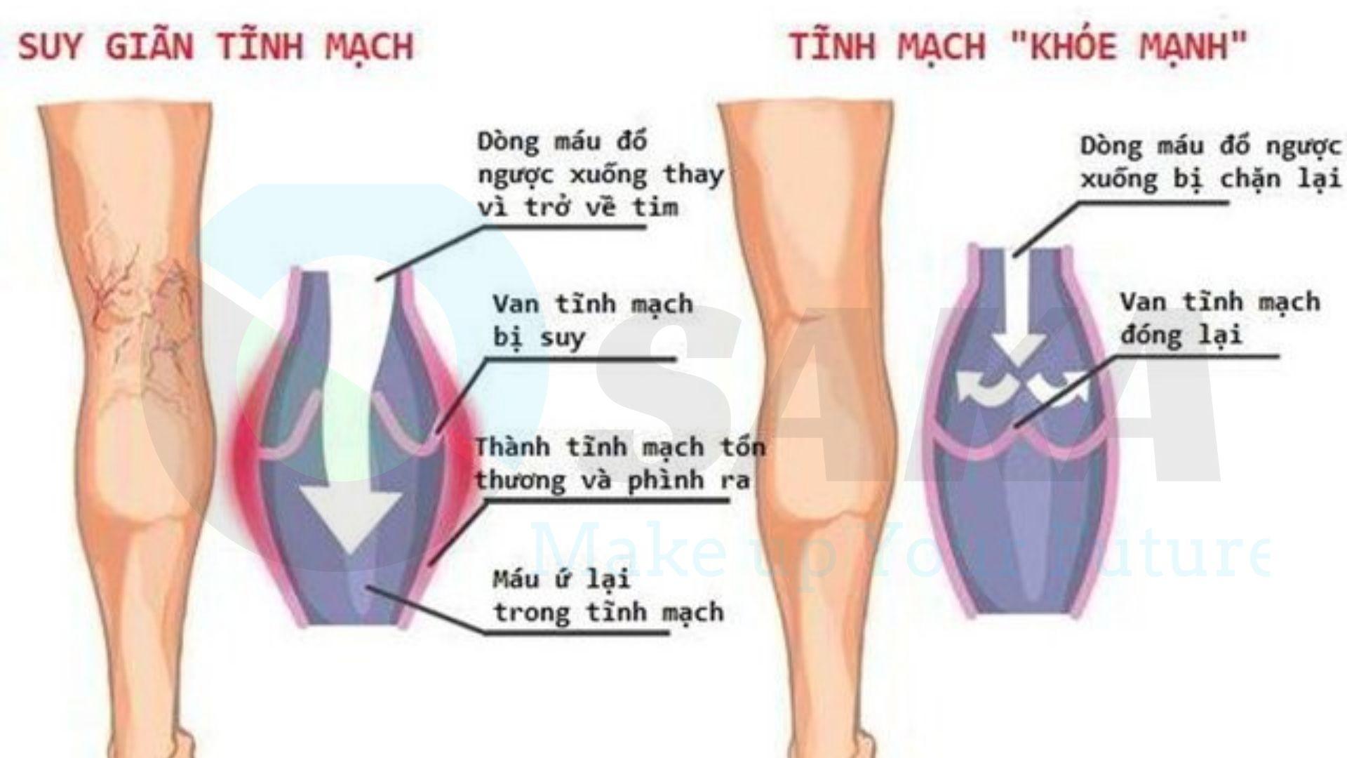 Vấn đề giãn tĩnh mạch chân độ C1