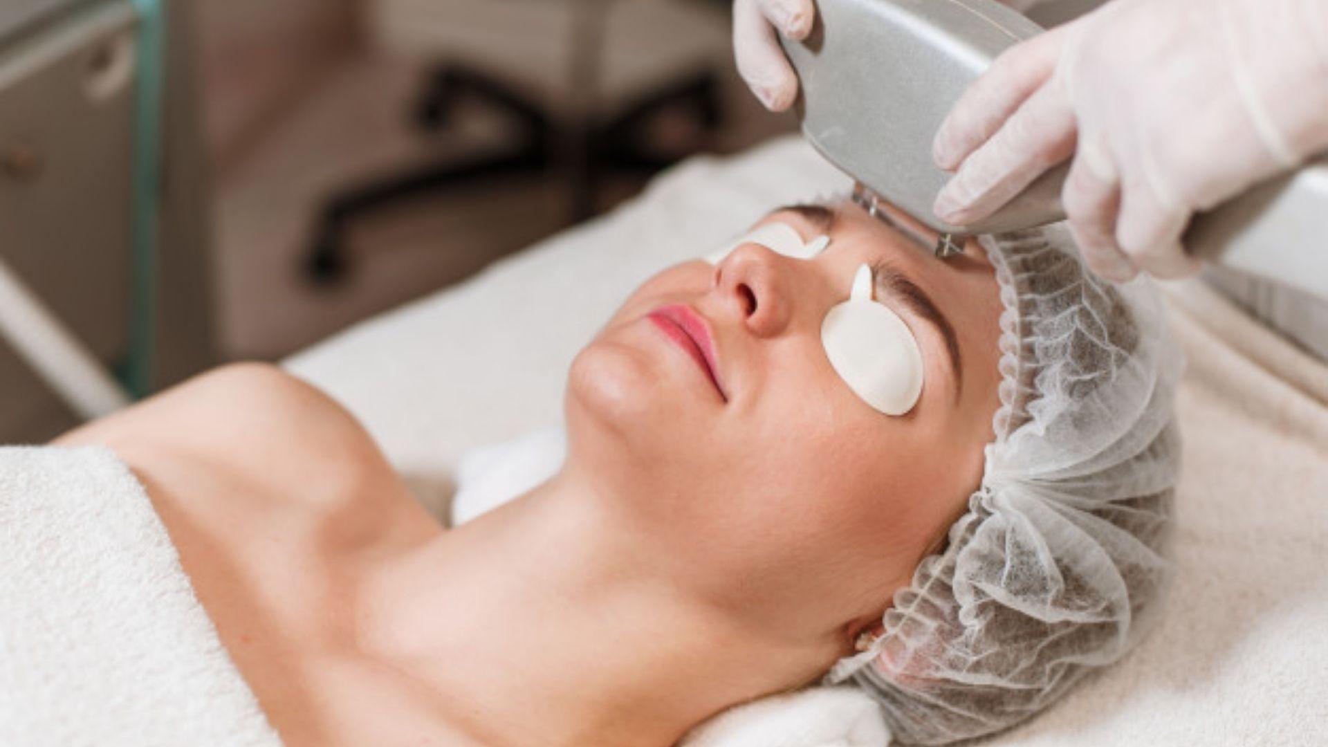 Công nghệ triệt lông mặt bằng laser