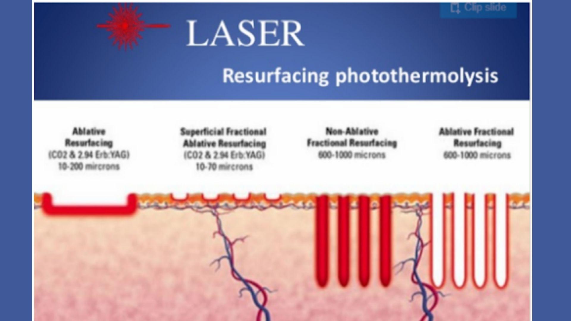 Phản ứng nhiệt khi laser tác động