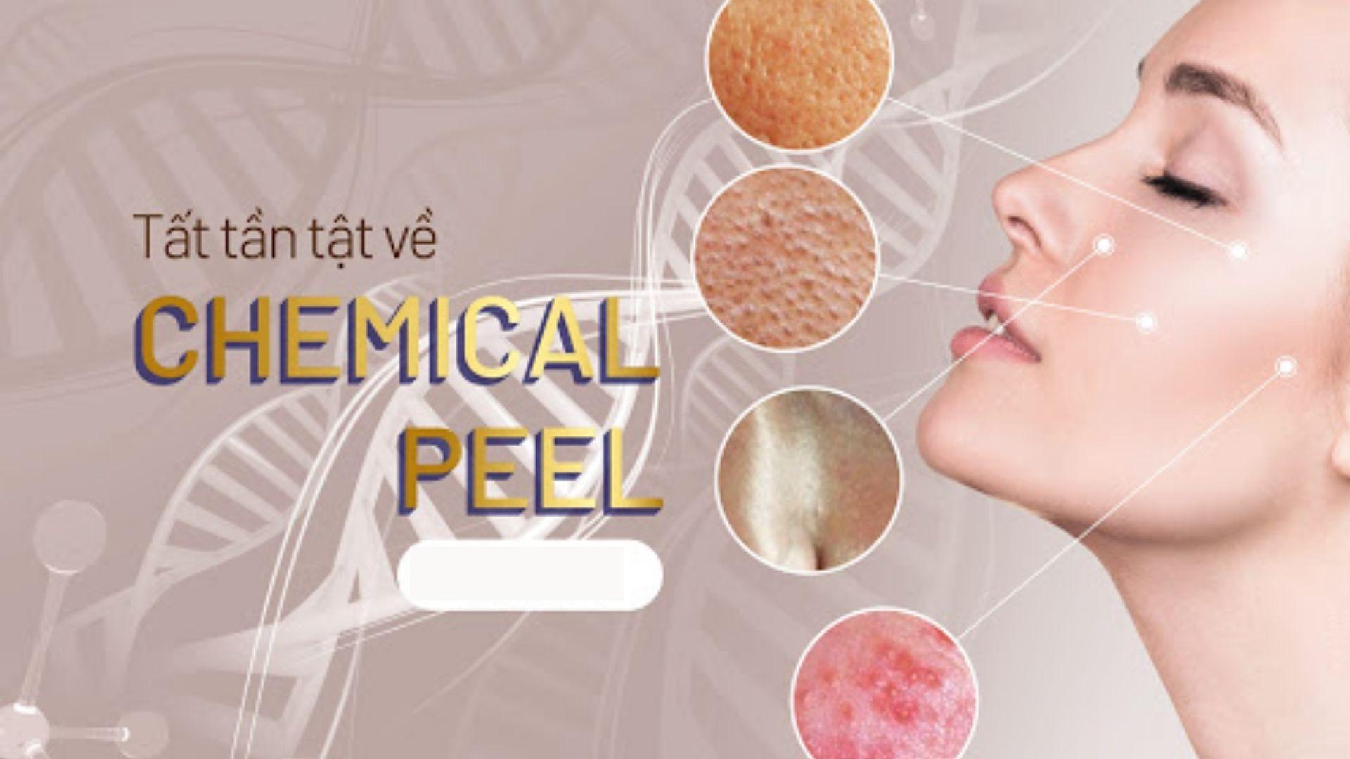 Phương pháp điều trị sẹo Chemical Peels