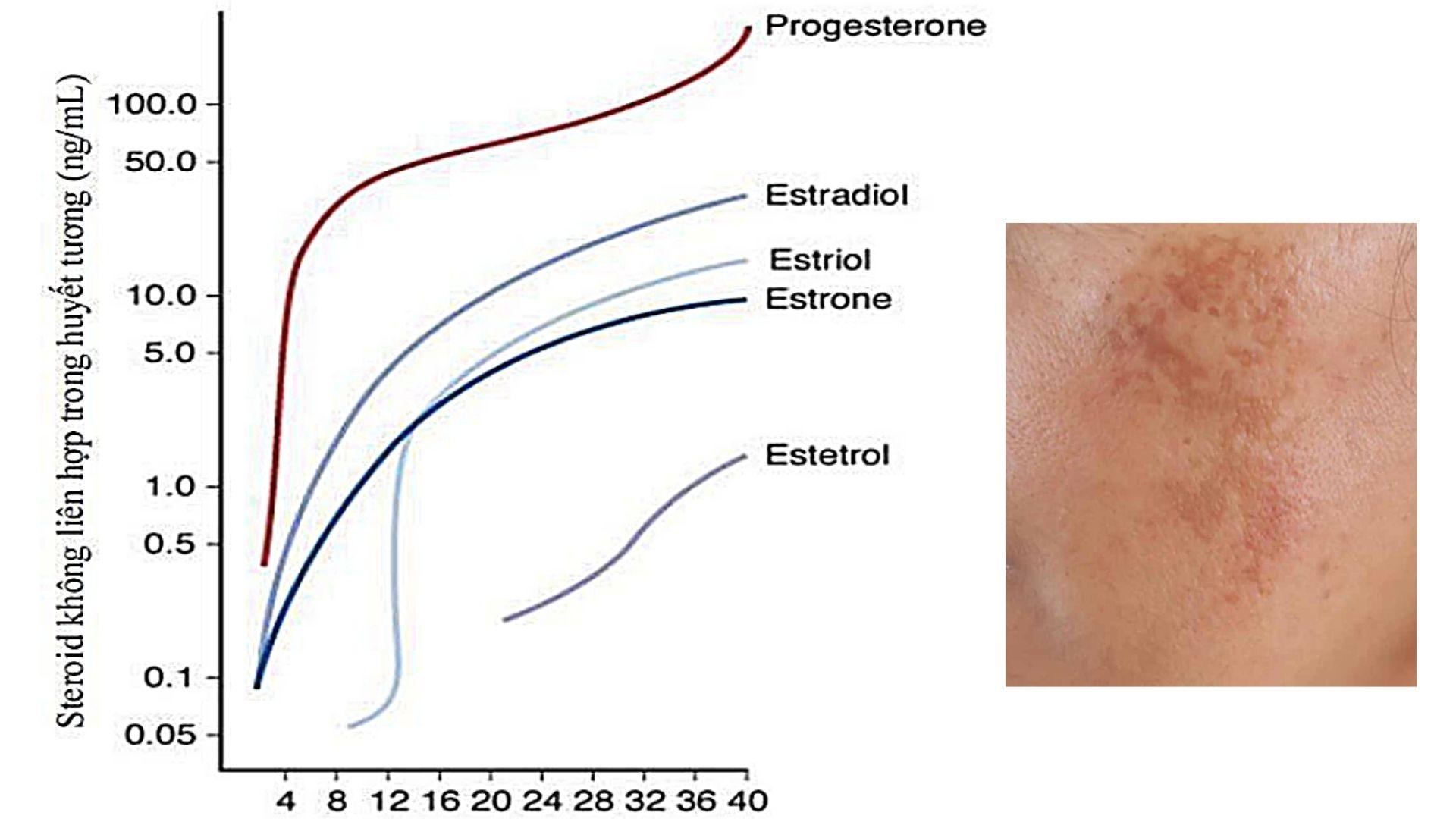 Rám má do tình trạng Progesterone thay đổi liên tục
