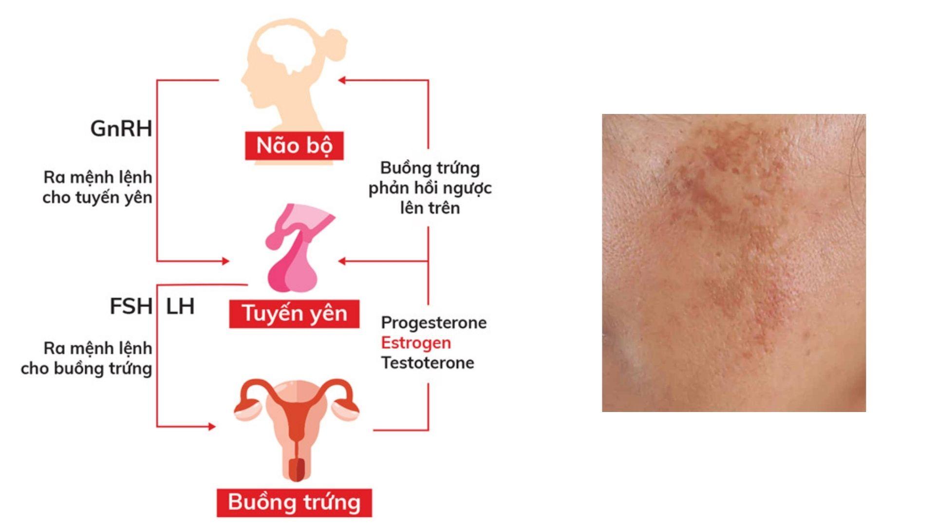 Thay đổi Estrogen gây tăng rám da phụ nữ sau sinh