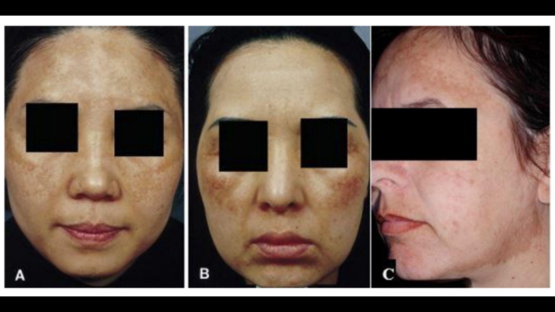 Tình trạng mắc bệnh rám má do sinh lý da