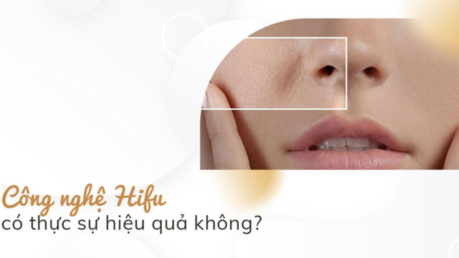 Trẻ hóa da bằng công nghệ HIFU