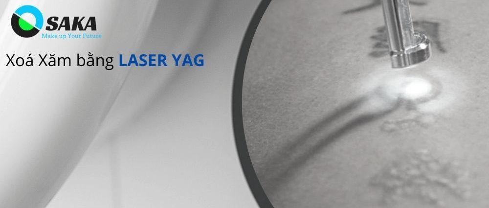 Xóa xăm Laser Yag