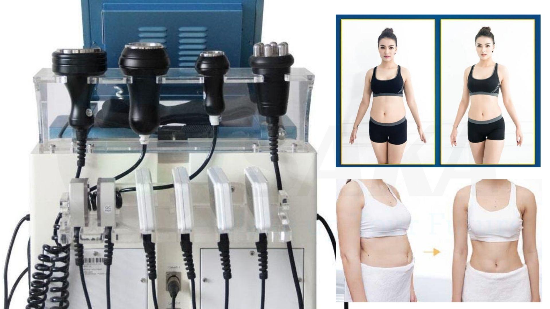 Cavitation giúp giảm béo như thế nào
