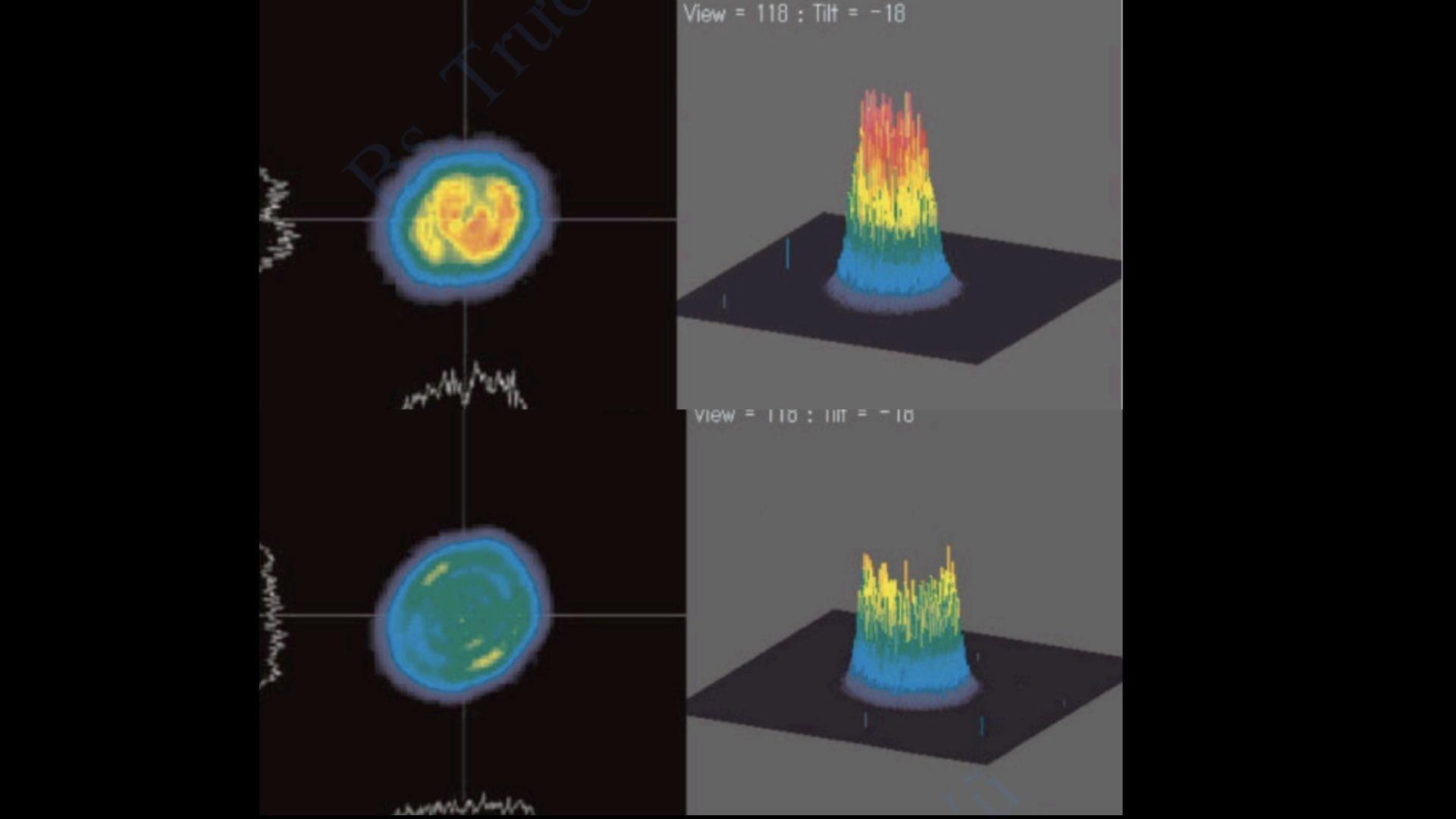 Cấu hình theo không gian của tia laser