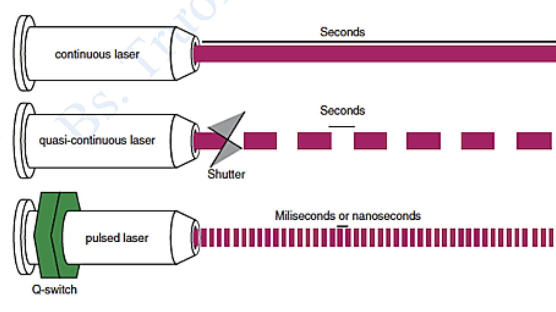 Cấu hình theo thời gian của tia laser