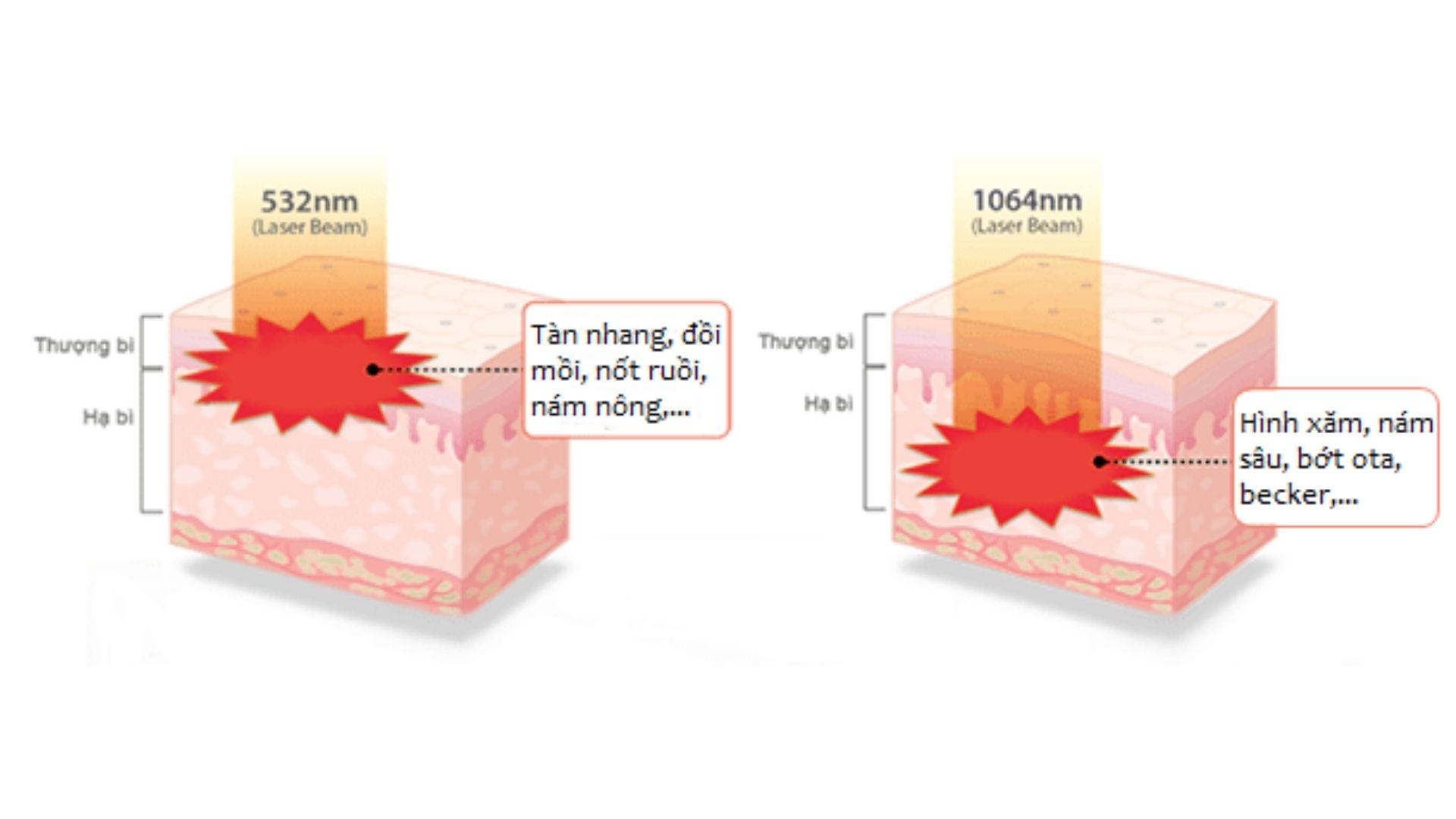 Cơ chế trị nám bằng laser như thế nào