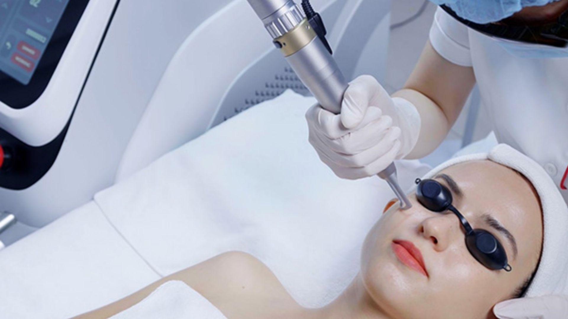 Công nghệ laser trị nám sau sinh tốt nhất hiện nay