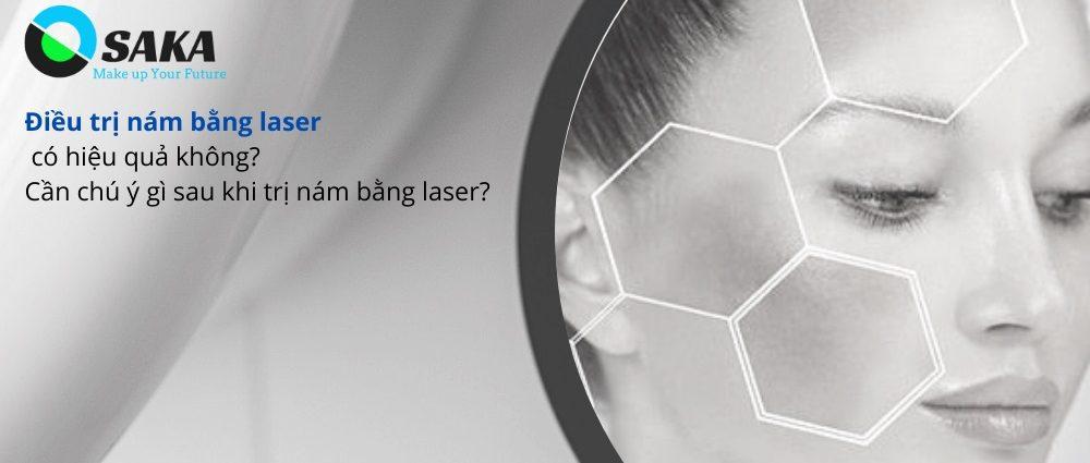 Điều trị nám bằng laser có hiệu quả không