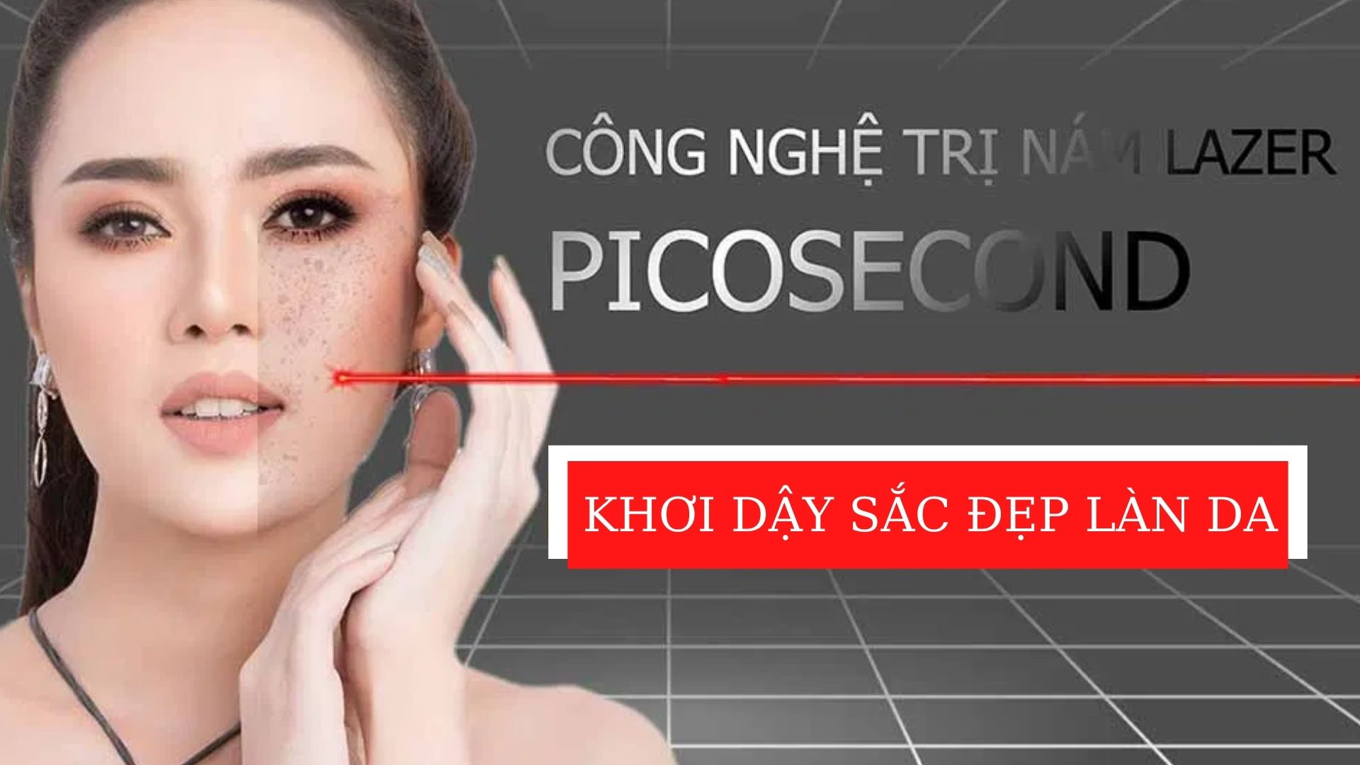 Liệu trình trị nám của công nghệ Picosecond như thế nào