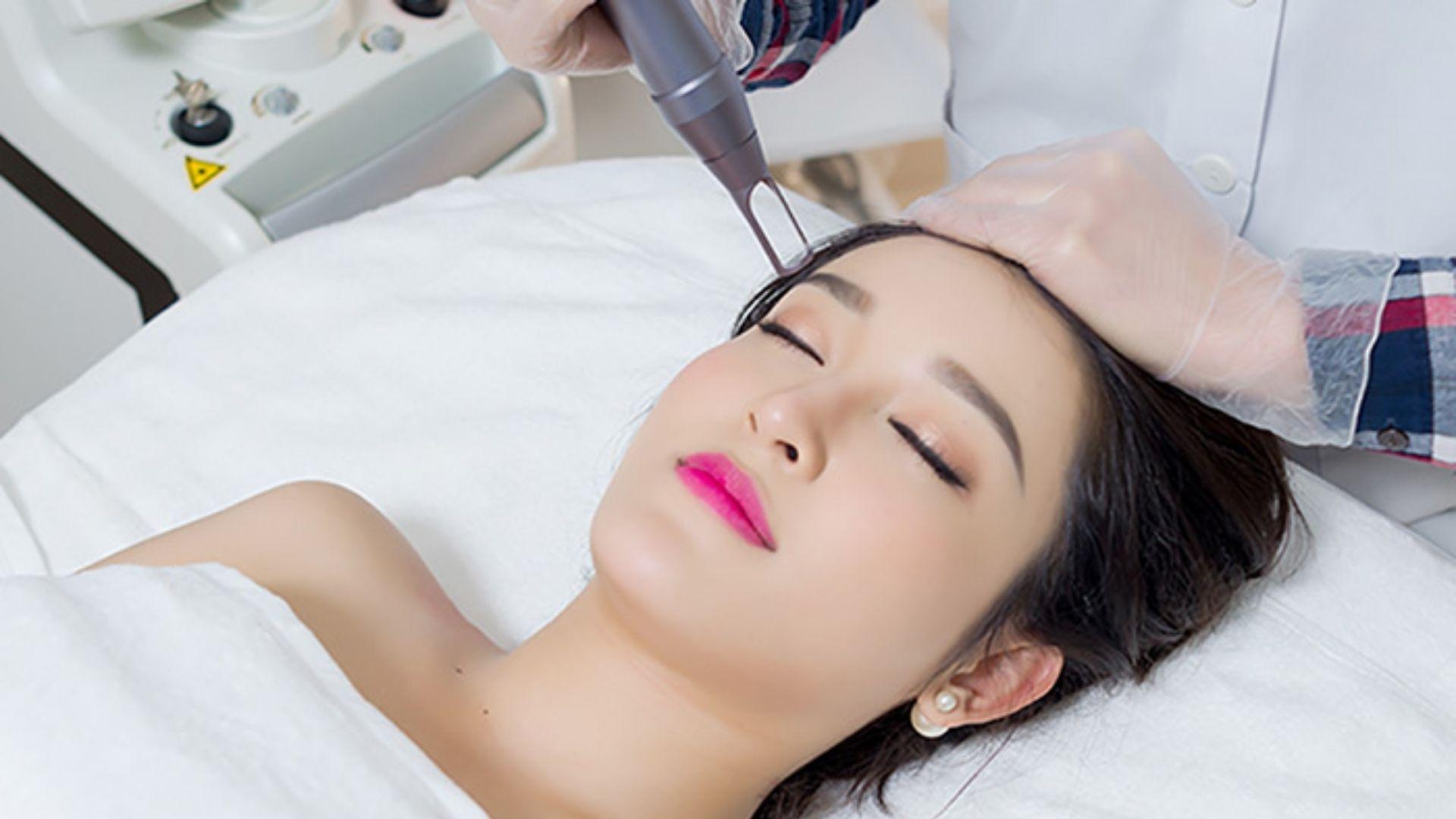 Nên trị nám da sau sinh bằng phương pháp nào